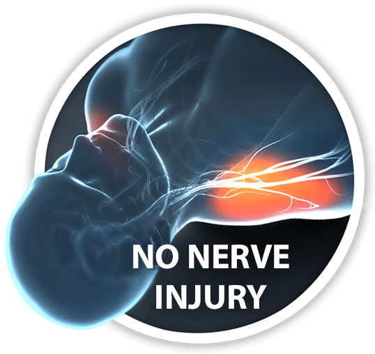 No nerve injury